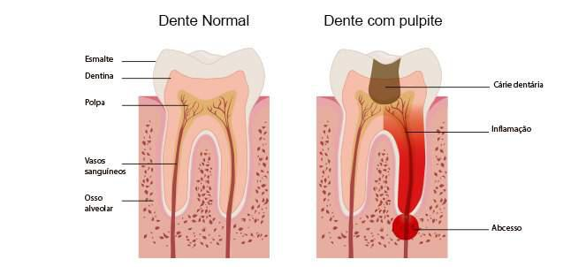 dor no canal do dente