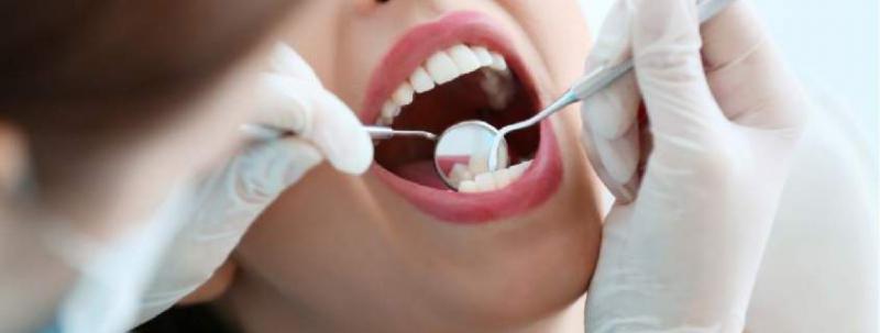 fazer canal ou extrair o dente