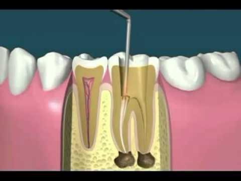 procedimento canal dentário
