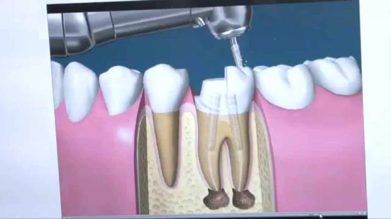 quando fazer canal no dente