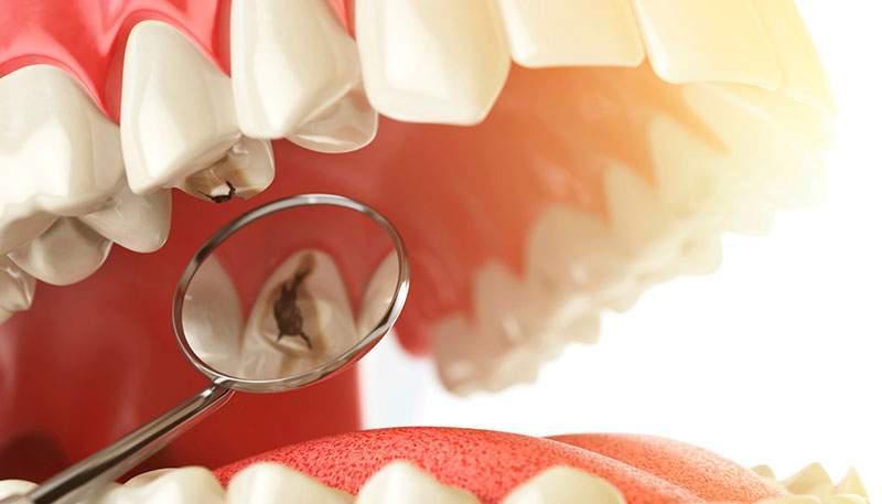 quanto custa um canal de dente