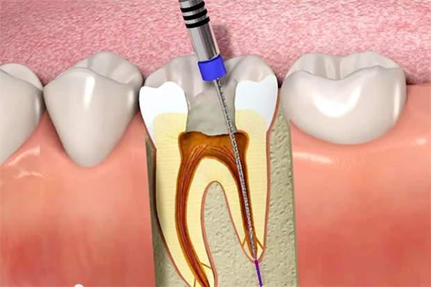 tratamento de canal no dente