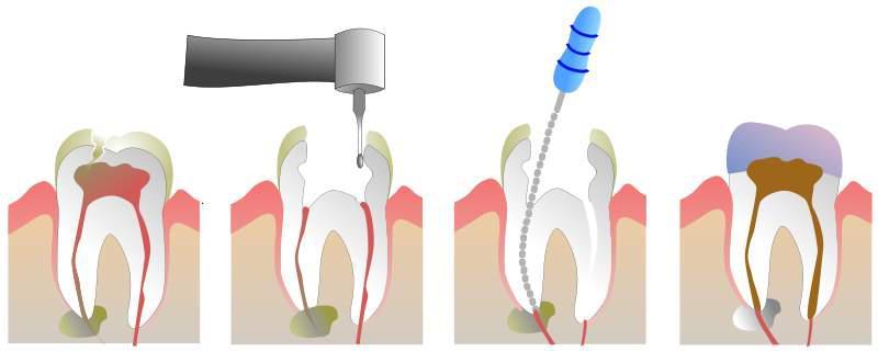carie tratamento de canal