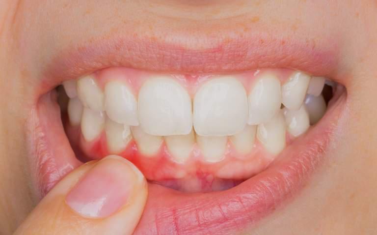 fazer canal com dente inflamado