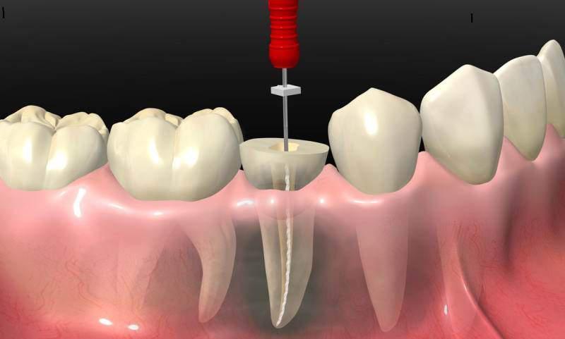 quanto custa um canal em um dente