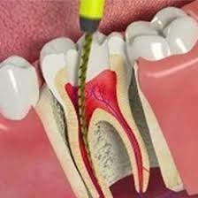 quanto custa um canal no dente molar