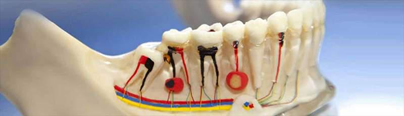 tratamento de canal dentário