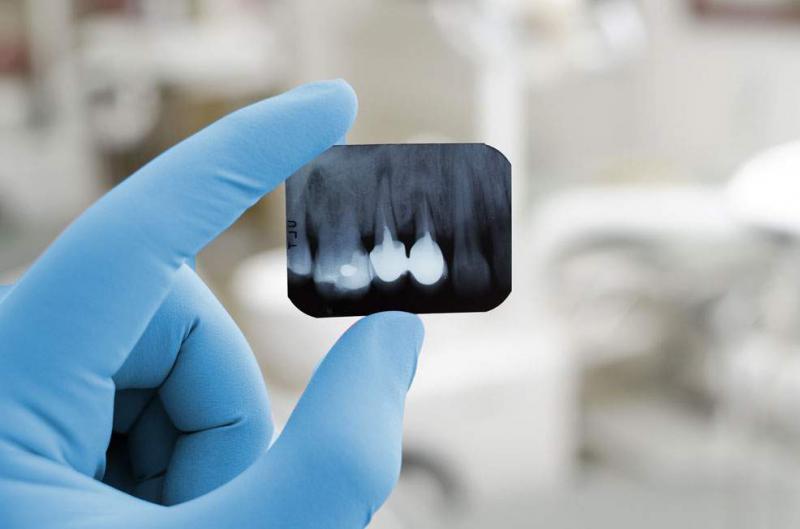 tratamento odontológico canal