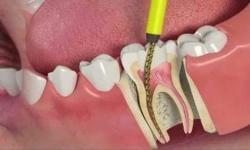 canal do dente aberto