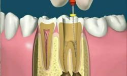quanto custa um tratamento de canal dentário