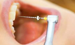 canal em um dente