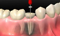canal odontologia