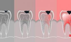 dentista canal
