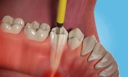 dor de canal dentário