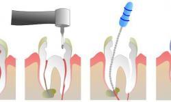 dor dente canal