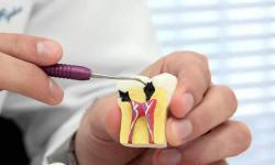 quanto custa para fazer um canal no dente