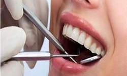 quanto custa um canal no dente