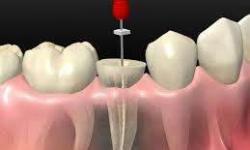 tratamento dentário de canal