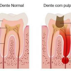 dor no canal do dente