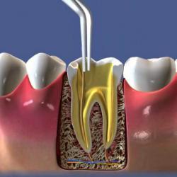 inflamação no canal do dente