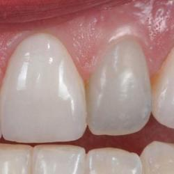 canal dentário dente da frente