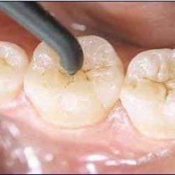 canal dente preço
