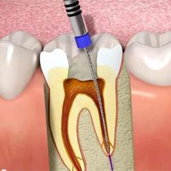 cirurgia de canal no dente