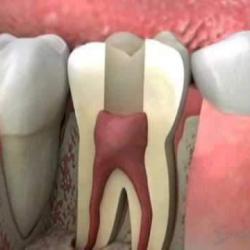 dente com canal inflamado