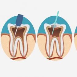 preço de um canal dentário