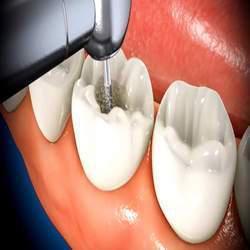 quanto custa tratamento de canal dentário