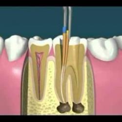 tratamento de canal dental