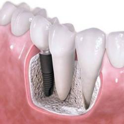 tratamento de canal odontologia