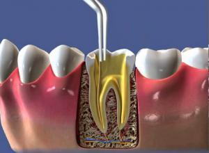 canal de dente inflamado