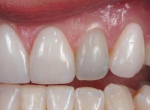 canal no dente preço