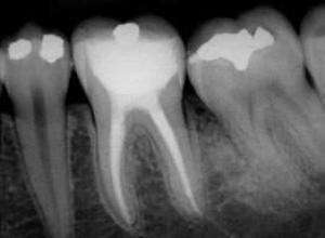 cirurgia de canal dentário