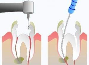 dentista de canal
