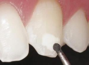 dentista especialista em canal