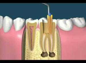quando fazer um canal no dente