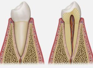 quando precisa fazer canal no dente