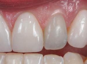 tratamento de canal dente inflamado