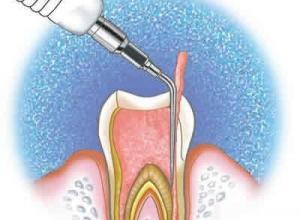 valor de um canal dentário
