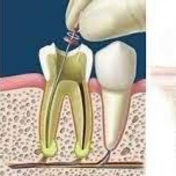 canal dentário preço