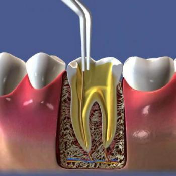 dente inflamado canal