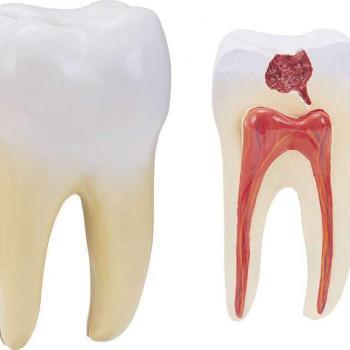 especialista em canal de dente