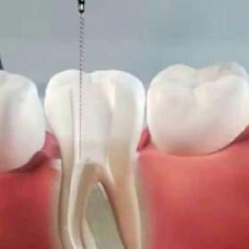 tratamento de canal a laser