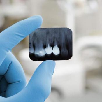 valor de um canal no dente